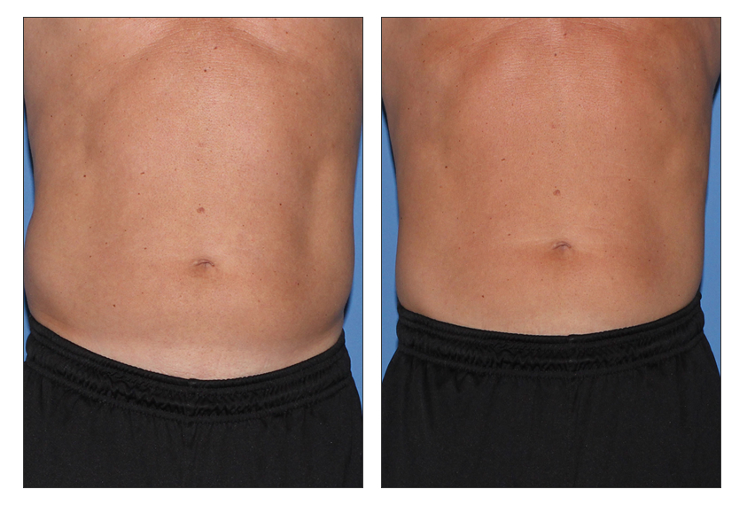 Cosmetic Laser Treatments Skin And Cosmetic Treatments