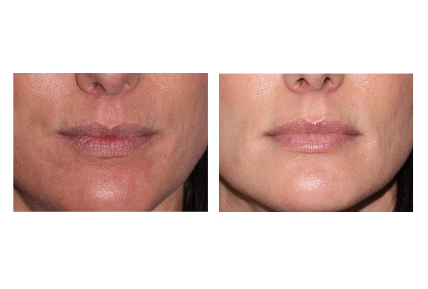 Satellite Structure likewise  besides Before And After Juvederm 2 furthermore 112014s besides Pic Gallery. on procedures photo gallery